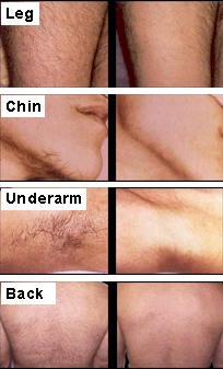 Many patients describe the laser hair removal sensation as a rubber band ...
