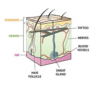 Laser Tattoo Removal | QEsthetics Laser Clinic Toronto