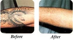 Tatto Removal Laser on Laser Clinic    Blog Archive    All About Laser Tattoo Removal